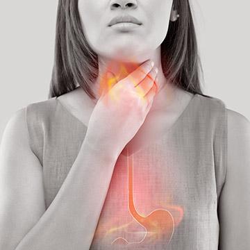 GERD Acid Reflux Disease